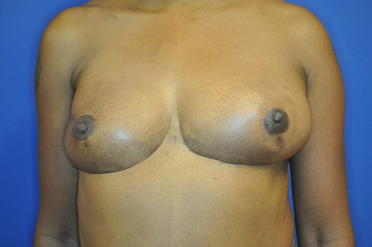 Breast Lift Before and After Image