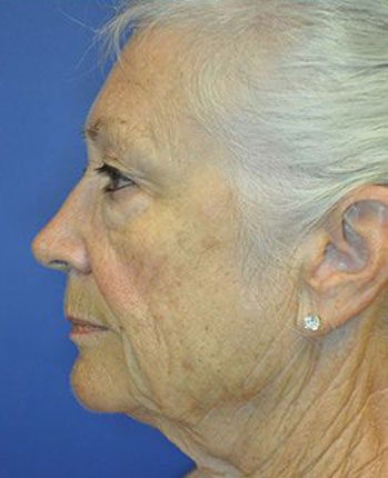 Facelift Before and After Pictures Boca Raton, FL