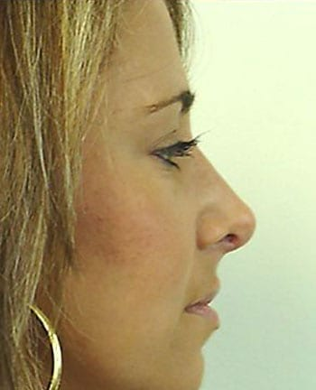 Rhinoplasty Before and After Pictures Boca Raton, FL