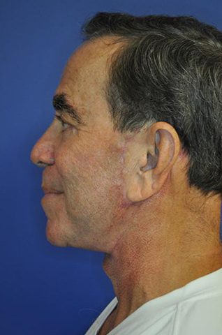 Male Face Lift Before and After Pictures Boca Raton, FL