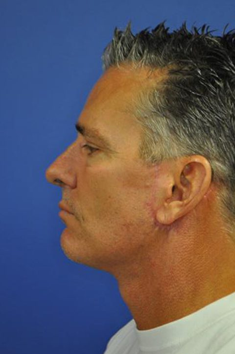 Male Neck Lift Before and After Pictures Boca Raton, FL