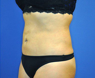 Liposuction Before and After Pictures Boca Raton, FL