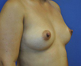 Breast Augmentation Before and After Pictures Boca Raton, FL