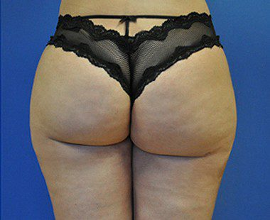 Brazilian Butt Lift Before and After Pictures Boca Raton, FL