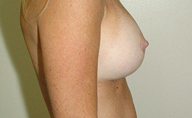 Breast Lift Before and After Pictures Boca Raton, FL