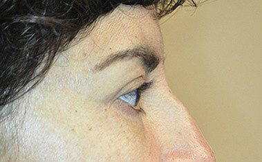 Blepharoplasty Before and After Pictures Boca Raton, FL